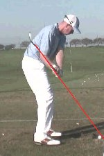 Shaft through right forearm